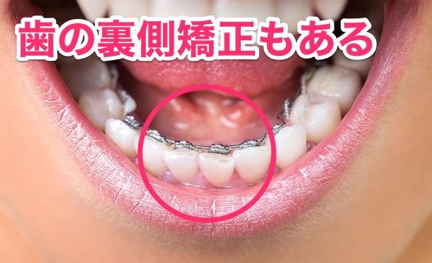 C:歯の裏側ブラケット(矯正器具)