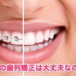 【実録】婚活の歯列矯正に関する3つのメリット・デメリット