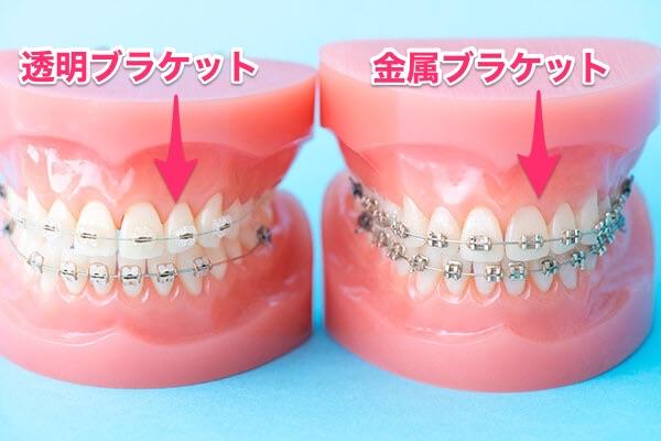 A・B:歯の表側へ矯正器具の場合